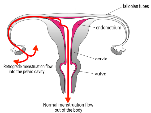 heavy periods and retrograde bleeding noijam
